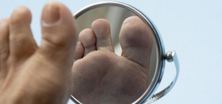 Foot Care PEI - Person looking at the sole of their foot in a mirror